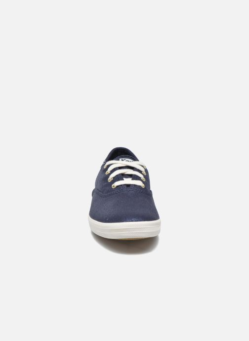 Sneakers Keds Ch Metallic Canvas Azzurro modello indossato