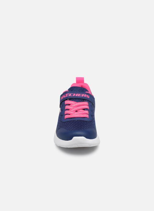 Sportschuhe Skechers Dynamight Lead Runner blau schuhe getragen